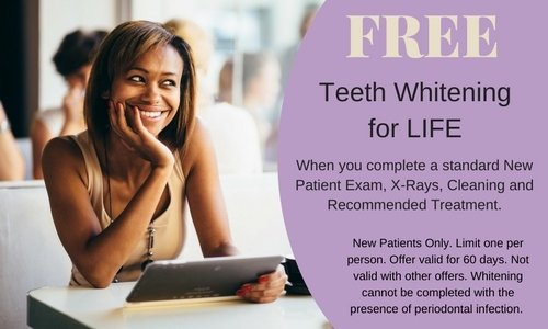 free whitening for life